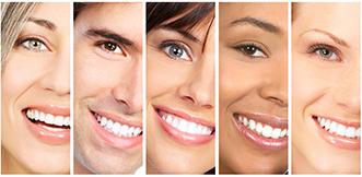 Blanqueamiento Dental 1